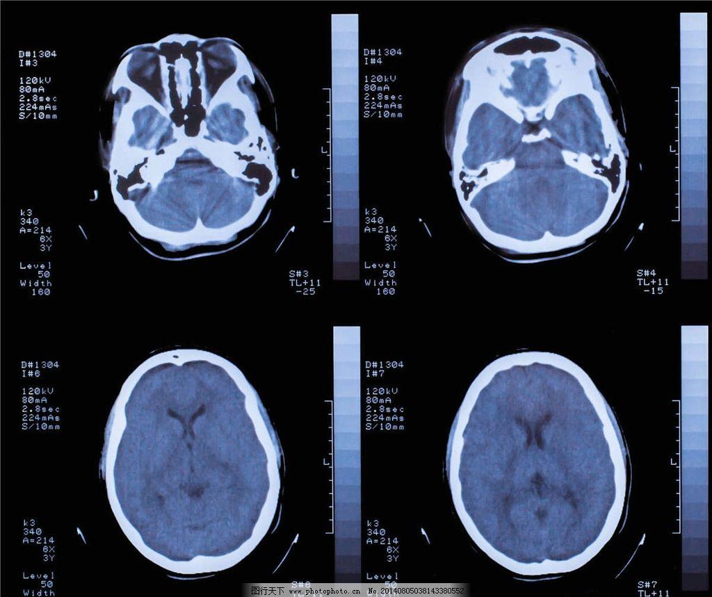 大脑ct结构示意图
