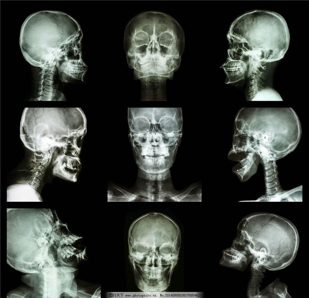头部结构核磁图